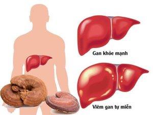 Nấm lim hỗ trợ điều trị viêm gam