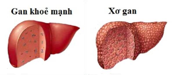Nấm lim xanh có tác dụng điều trị bệnh gan
