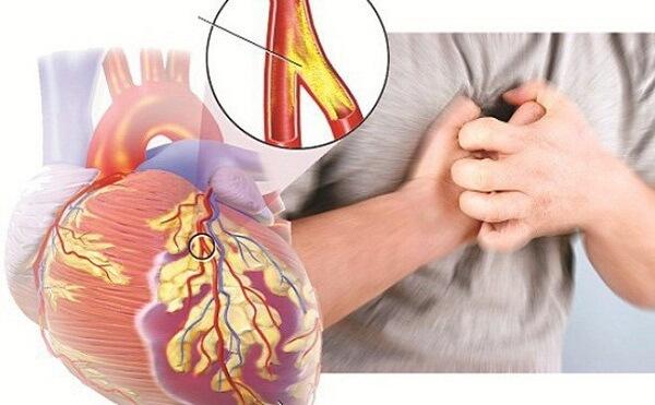 Suy tim cũng là một biểu hiện co thắt mạch
