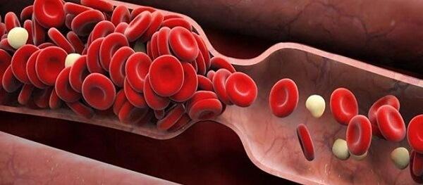 Co thắt mạch máu gây nhiều biến chứng nguy hiểm