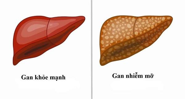 Gan nhiễm mỡ là nguyên nhân tiềm ẩn của nhiều căn bệnh về gan nguy hiểm