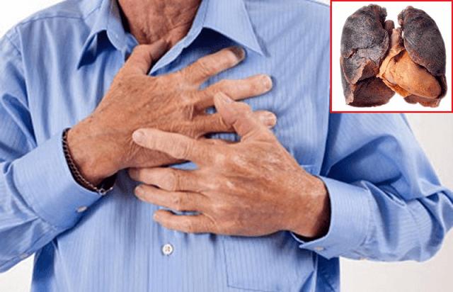 Suy giảm miễn dịch khiến người già dễ bị mắc các bệnh nhiễm trùng, đặc biệt là nhiễm trùng phổi